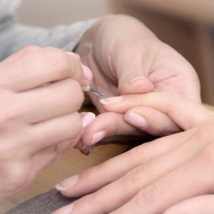 Chistotet per trattamento di posizione di unghie