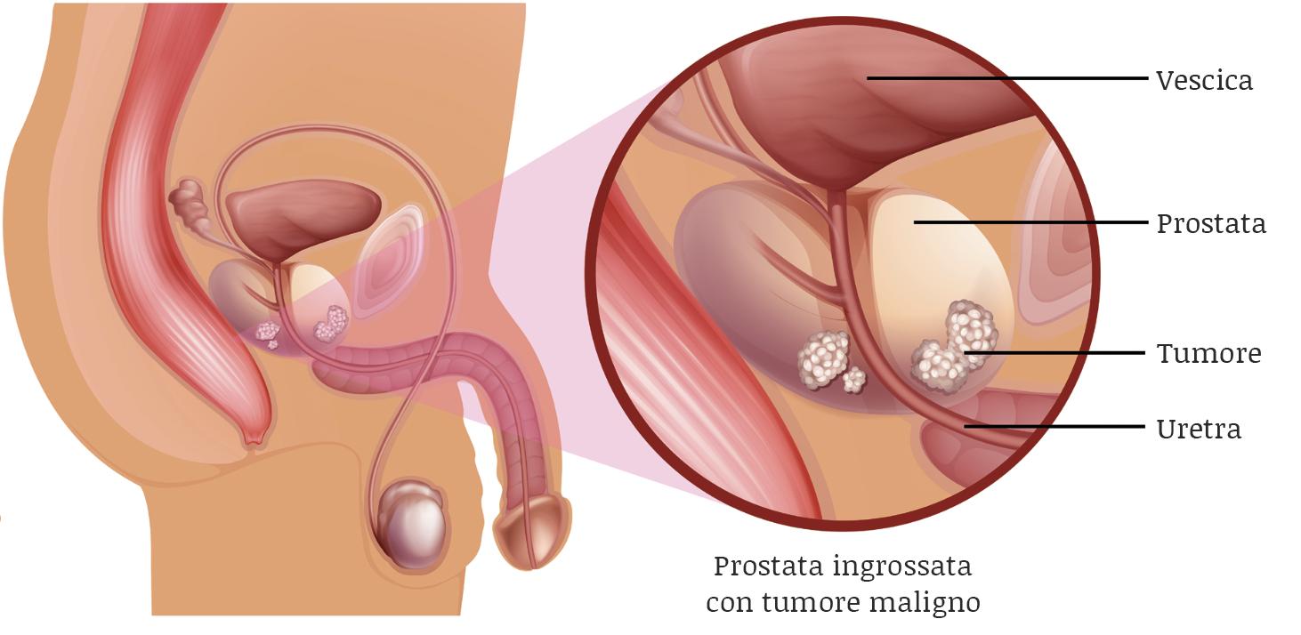 indurimento alla prostata parte del