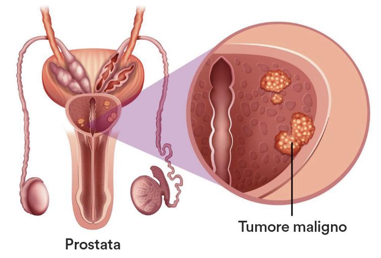 tumore alla prostata nelle donne