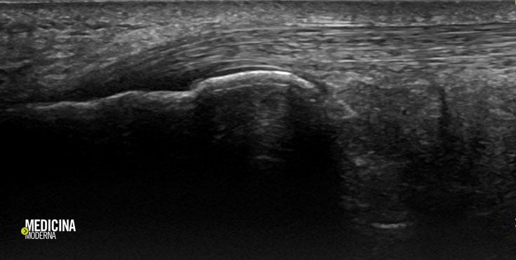 ecografia muscolo-tendinea del tallone d'Achille